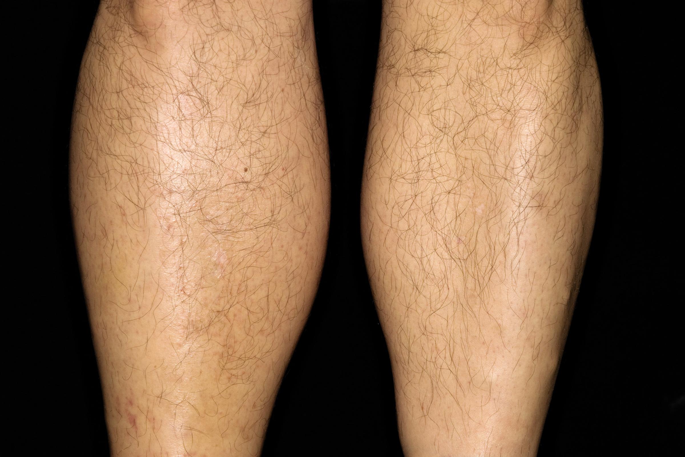 vörös foltok az alsó lábszár kezelésén)