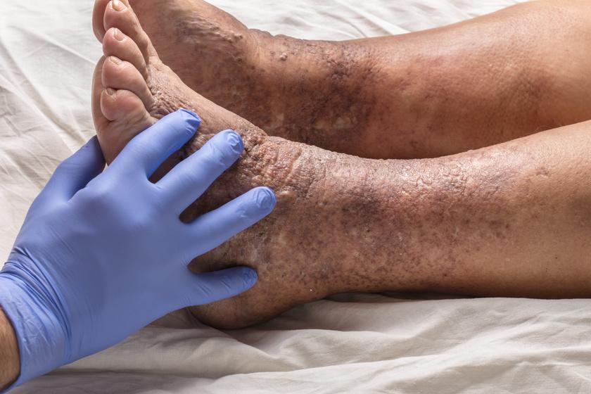 enyhíti a viszketést a láb pikkelysömörével