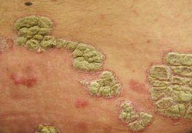 vörös foltok a bőrön az érintéstől hogyan lehet megszabadulni az arcon jelentkező herpesz utáni vörös foltoktól