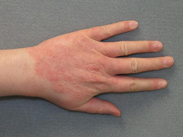 vörös durva folt jelent meg a kéz bőrén bőrkiütés vörös foltok formájában felnőtteknél viszketés