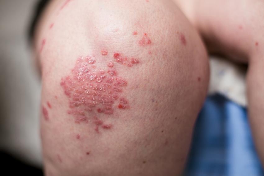 pikkelysömör kezelése aralia tinktúrával vörös foltok a lábakon viszketéssel