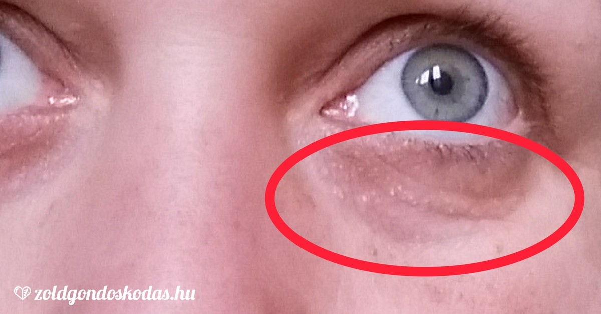 vörös foltok a szem alatti bőrön)