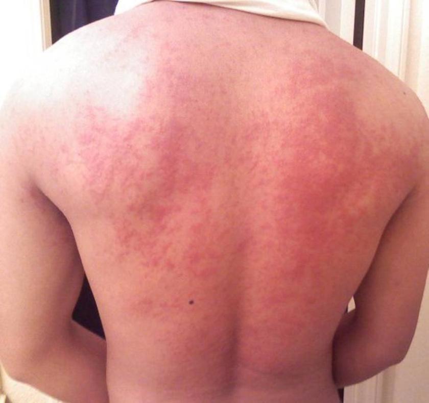 vörös viszkető duzzadt foltok az egész testen)