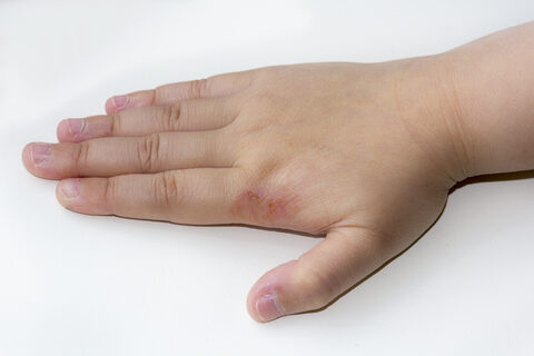 hólyagokkal és vörös foltokkal borított kezek)