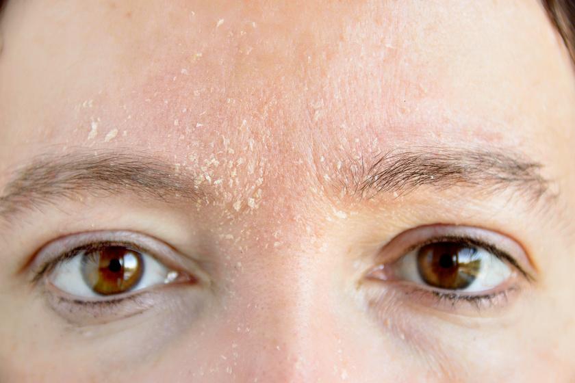 az arcon a bőr száraz, vörös foltokkal
