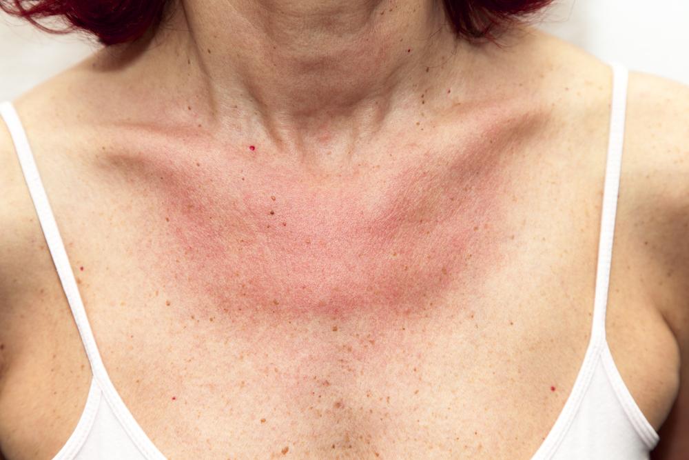 bőrkiütés vörös foltok formájában az egész testen)