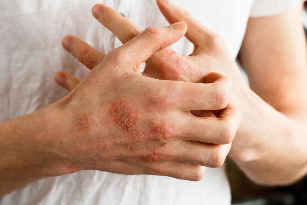 kitörések a bőrön vörös foltok formájában, viszketés a lábakon