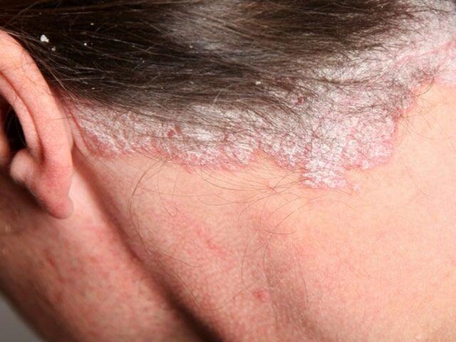 vörös foltok fájnak a kezeken a szájnyálkahártya pikkelysömörének kezelése