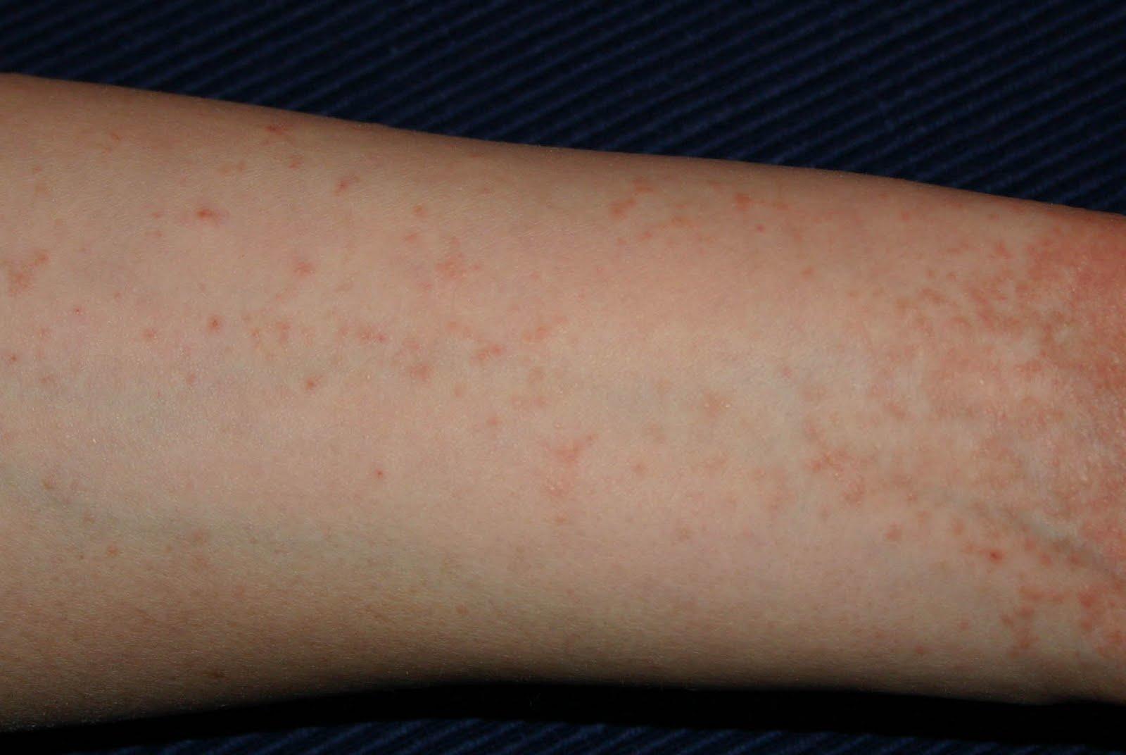 vörös durva folt a felnőtt karján