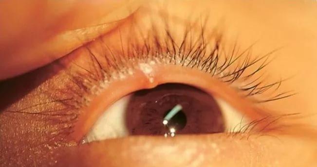 a szemhéjon vörös foltok hámozzák le a kezelést)