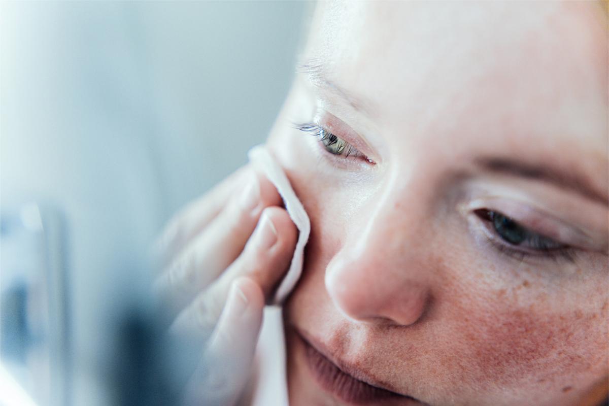 Hogyan lehet megkülönböztetni a dehidratált és a száraz bőrt? | BIODERMA