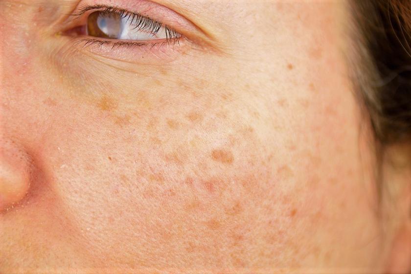 vörös foltok bukkannak fel az arcon pikkelysömör orvosság skin-cap