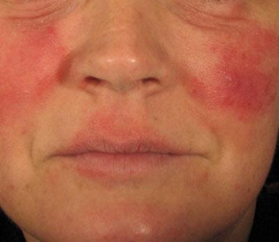 pikkelysömör kezelése az arcon és a fején otthon lorinden kenőcs és pikkelysömörről vélemények
