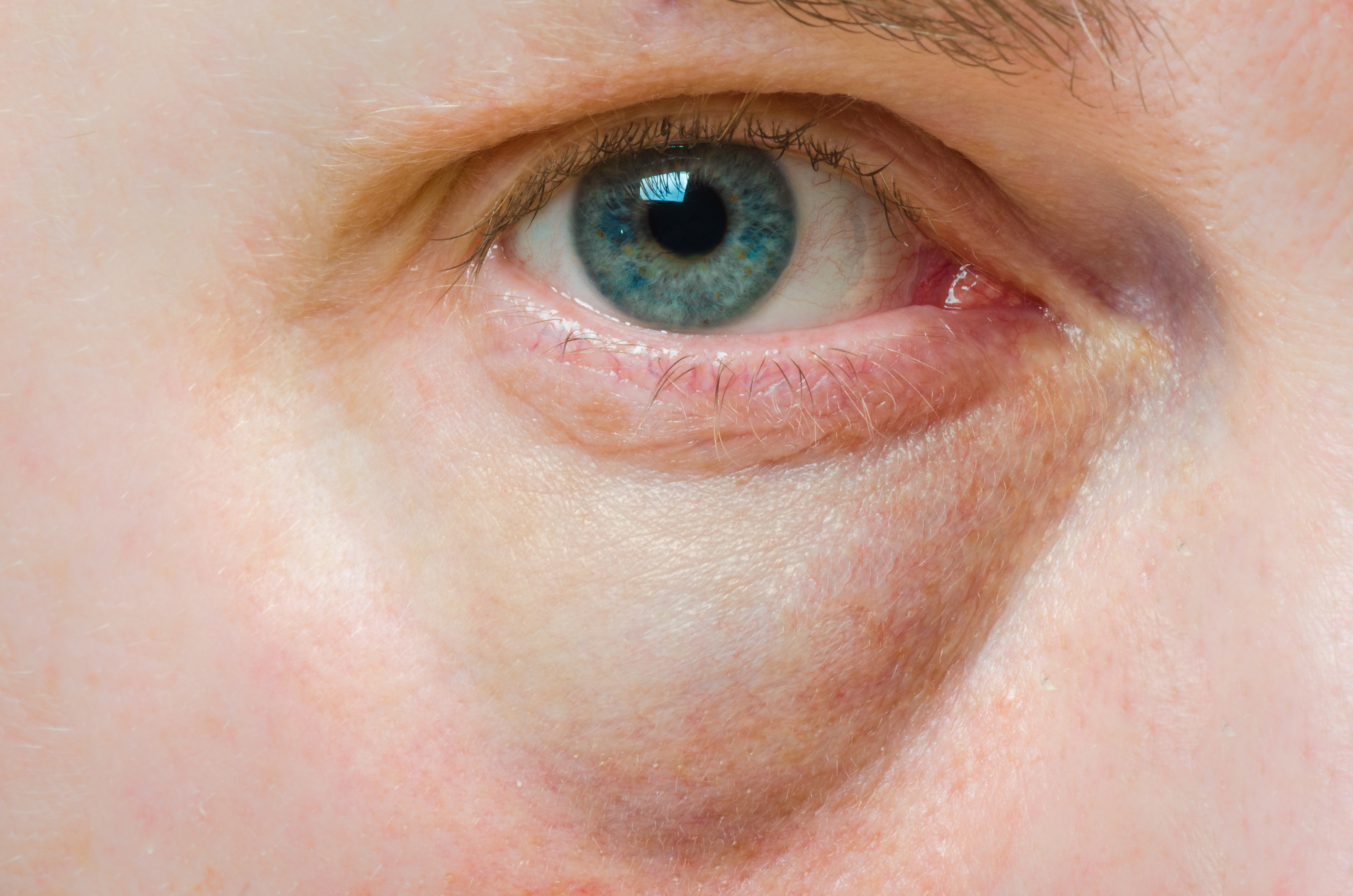 vörös foltok viszketnek a szem alatt)