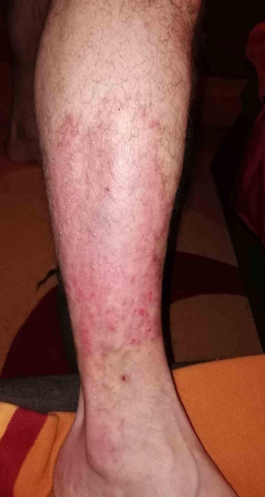 nagy kerek vörös folt a lábán Ivan tea pikkelysömör kezelése