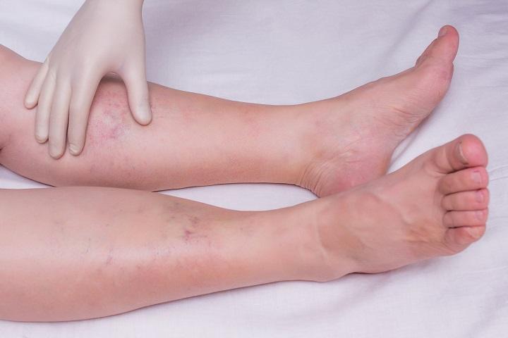 a láb duzzanata és vörös foltok