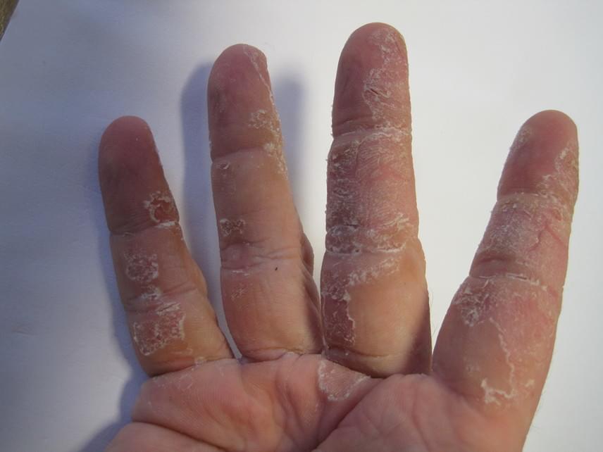 vörös folt jelent meg a kézen, és lehámlik)