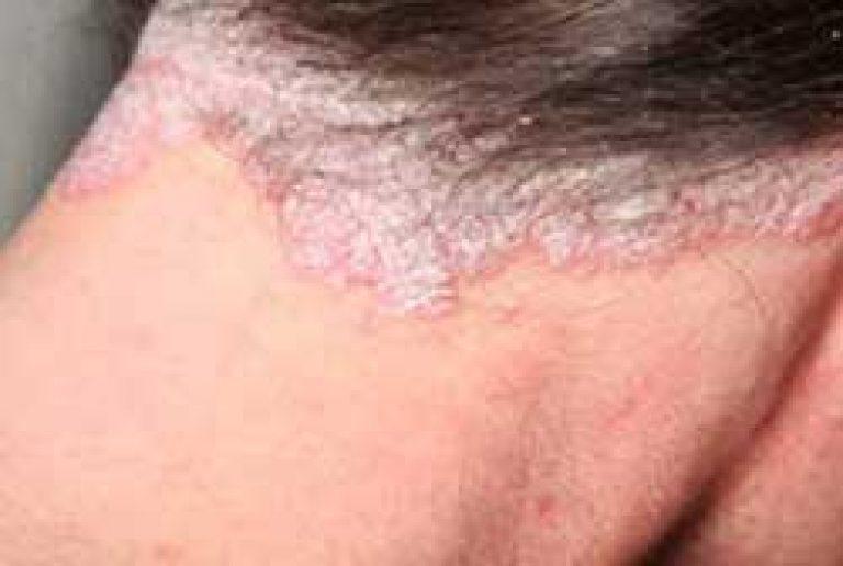 Viburnum pikkelysömör kezelése