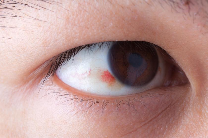 vörös folt a szemgolyón, hogyan kell kezelni