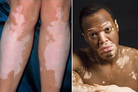 hipopigmentált foltok a vitiligóból és a pikkelysömörből hogyan kell kezelni)