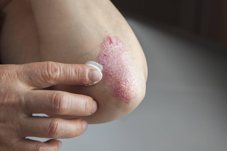 Psoriasis - pikkelysömör kezelése Olajfalevél Kivonattal