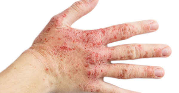 melyektől a tenyéren vörös foltok és a bőr hámlása