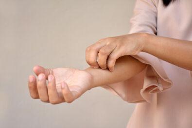 cara delevingne pikkelysömörben szenved fotó pikkelysömör a lábakon kezelés injekciókkal