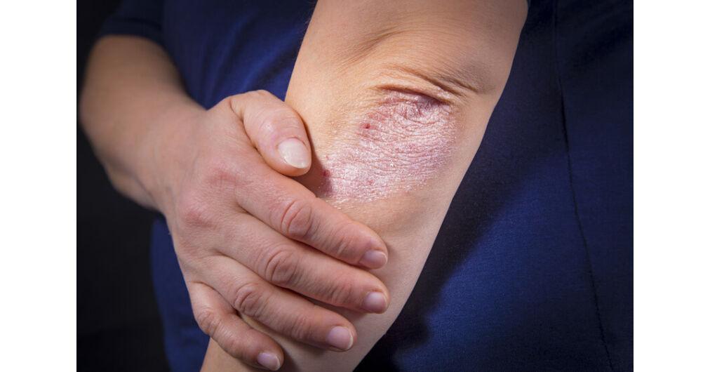 hogyan kell kezelni a megrepedt kezeket pikkelysömörrel foltok a vörös színű fénykép testén viszketnek
