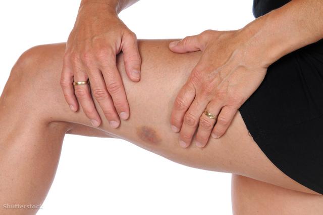 vörös folt a lábán egy zúzódás után