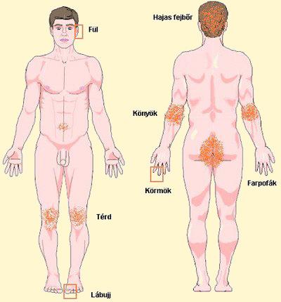 test pikkelysömör kezelése