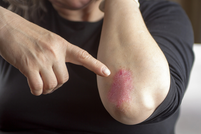réz-szulfát kezelés pikkelysömörhöz