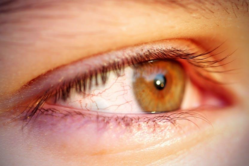 Kinövés a szem alatt