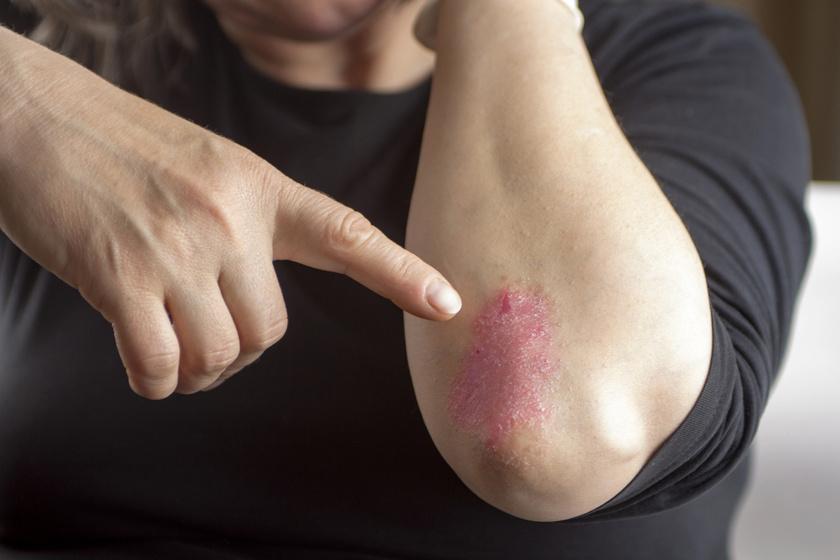 gyógyítható-e a pikkelysömör vagy sem vörös folt van a kezén és ég