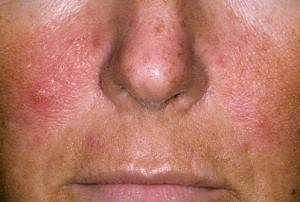 pikkelysömör az arcon. kezelés