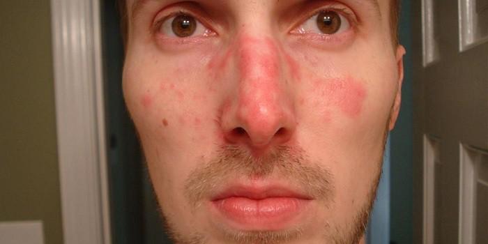 egy idős embernek vörös foltjai vannak az arcon