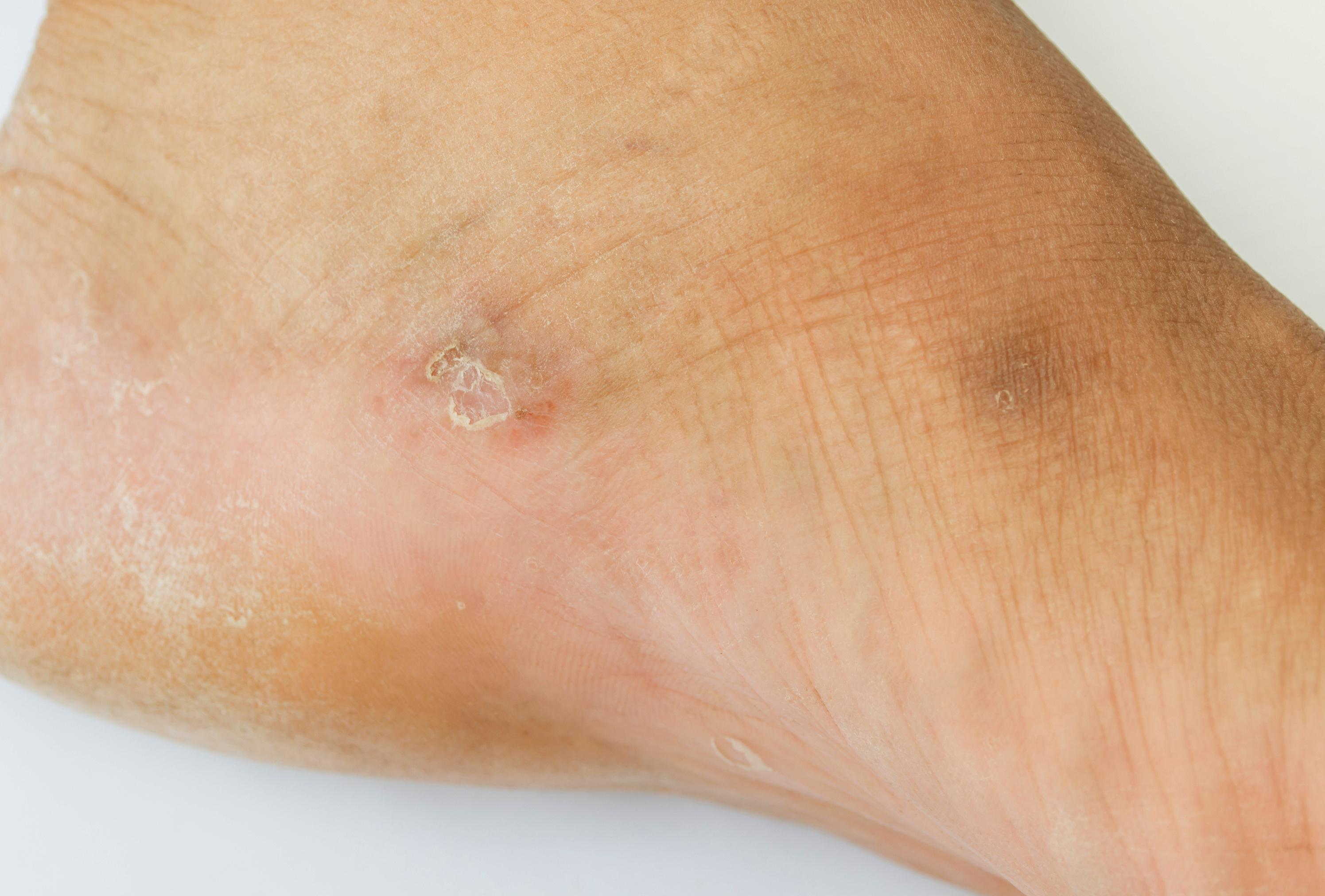 vörös foltok az arcon hámló és viszkető kezelés vörös foltok a lábakon lévő bőrön