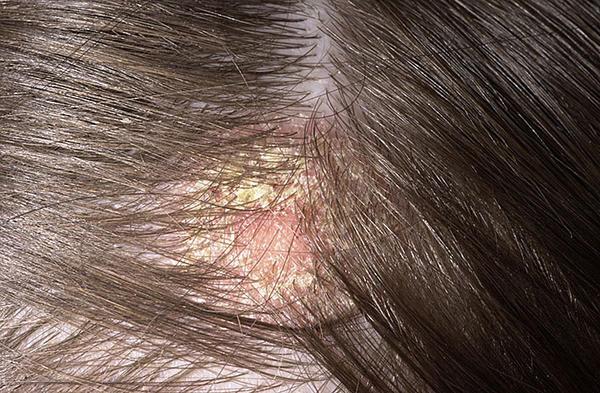 Gyógyszeres sampon pszoriázis fejbőr