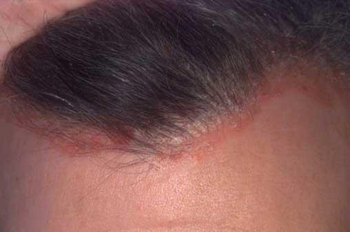 pikkelysömör kezelése a fej kenőcsökön a szem alatt vörös pikkelyes folt