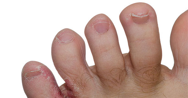 az ujjak között van egy piros folt a kézen