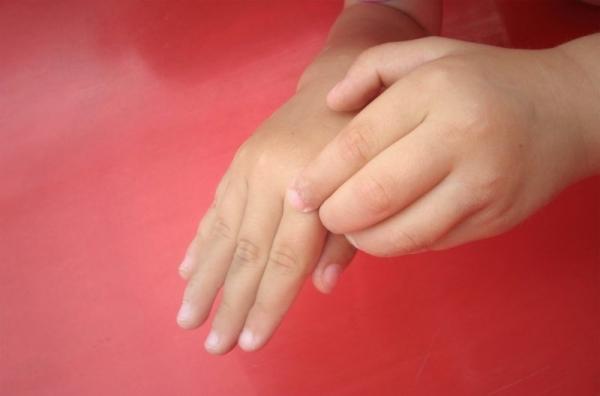 piros folt a jobb kezén születésétől fogva)