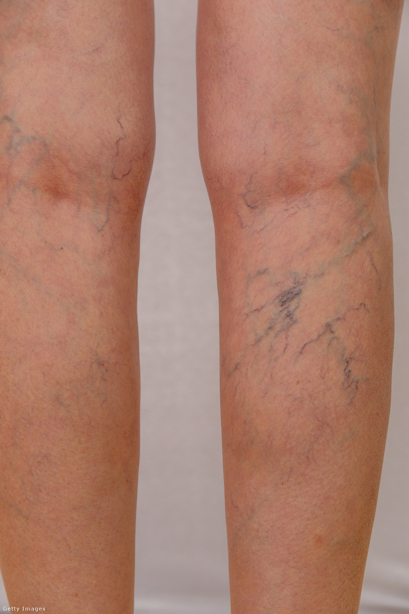 a lábak zsibbadnak vörös folt a lábán