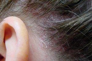 fejbőr psoriasis alternatív kezelések