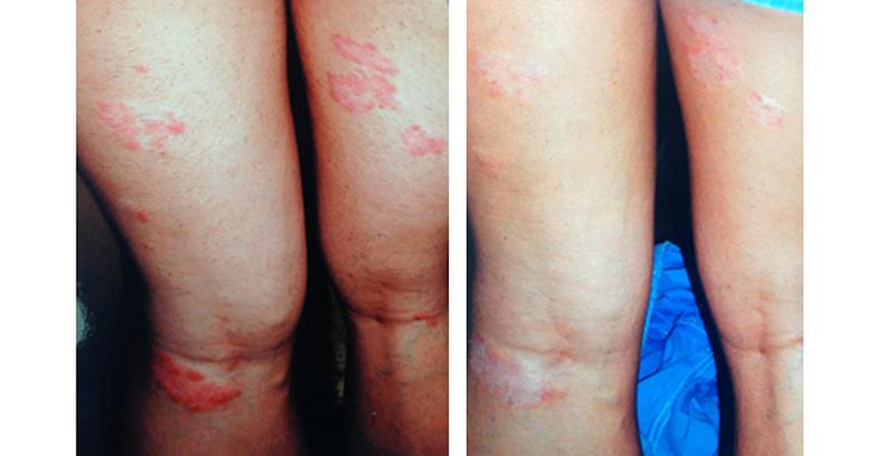 shamil barkuev pikkelysömör kezelése