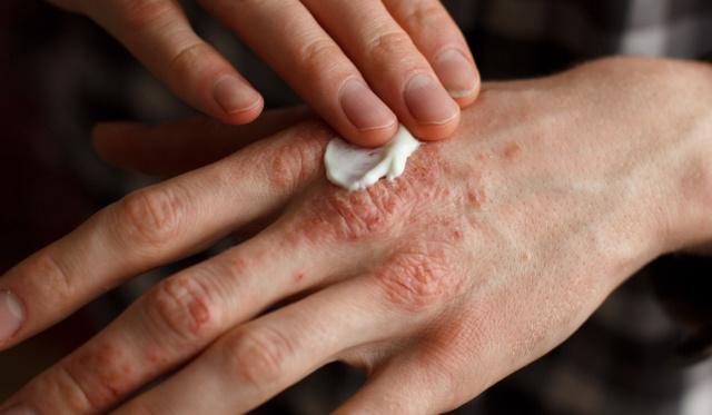 örökletes pikkelysömör kezelése száraz vörös foltok a lábakon fotó