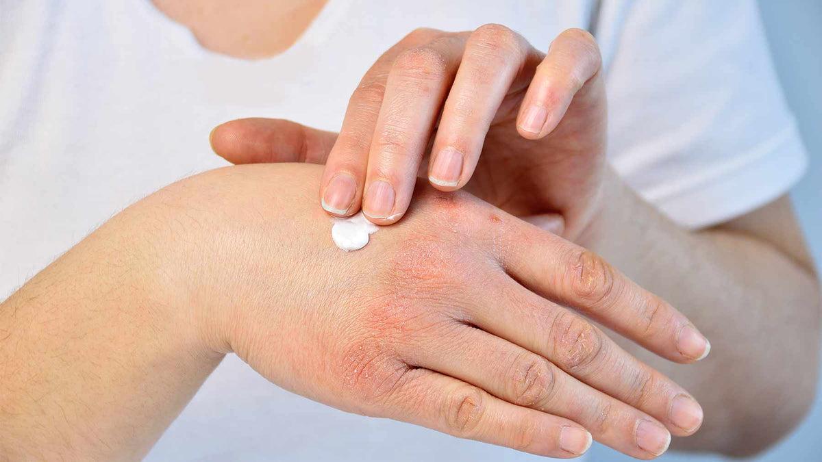 pikkelysömör tünetei és kezelése a fején népi gyógymódokkal