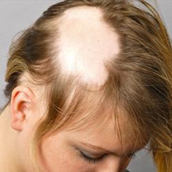 a fejbőr pikkelysömörének kezelése réz-szulfáttal)