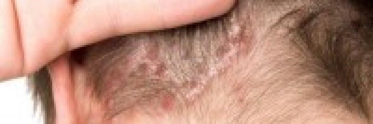 kenőcs a pikkelysömör vörös foltjai ellen lámpák pikkelysömör kezelésére
