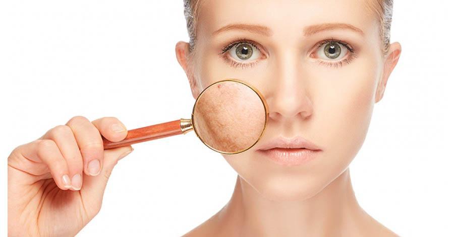 fehérítenek vörös foltokat az arcon vörös foltok kiütése az arcon és a kezeken