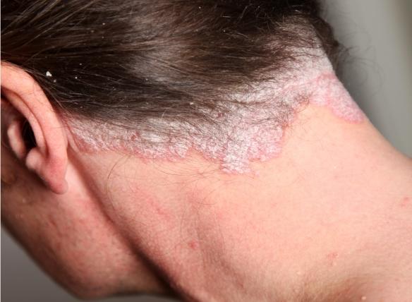 nyak pikkelysömör és kezelések)