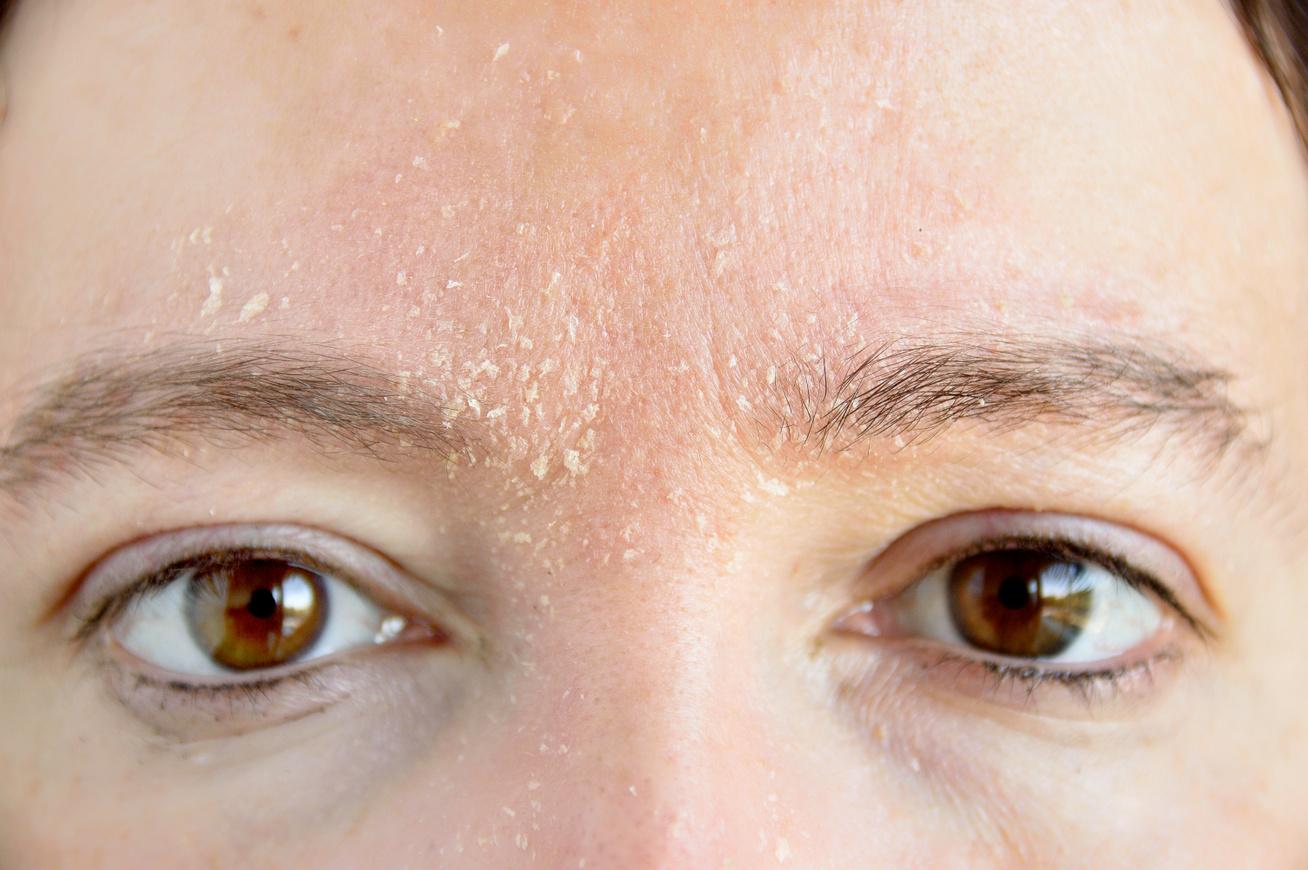 orvostudomány férfiak pikkelysömör kezelése az arcon és a kezeken lévő foltok vörösek és viszketőek